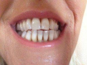 Dental Pro 7 is Definitely Original