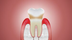Can Receding Gums Be Corrected at Albury